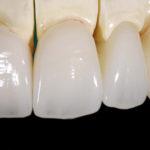 Prótese dentária em zircônia traz durabilidade e estética marcante.