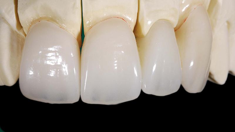 prótese dentária em zircônia post