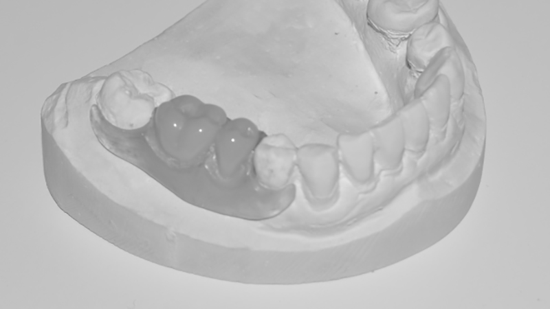 protese dentaria flexivel implante
