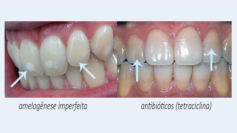 clareamento dentário caseiro antibiotico e fluorose