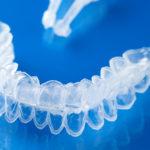 Clareamento dentário caseiro, eficiência e versatilidade sem segredos.