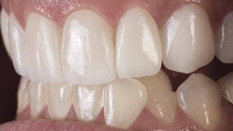 clareamento e lente de contato dental branco