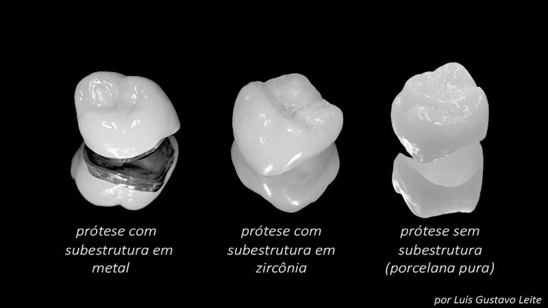 prótese dentária em porcelana resina acrílica zircônia tipos