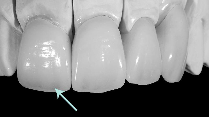 prótese em porcelana resina acrílico zircônia transparência