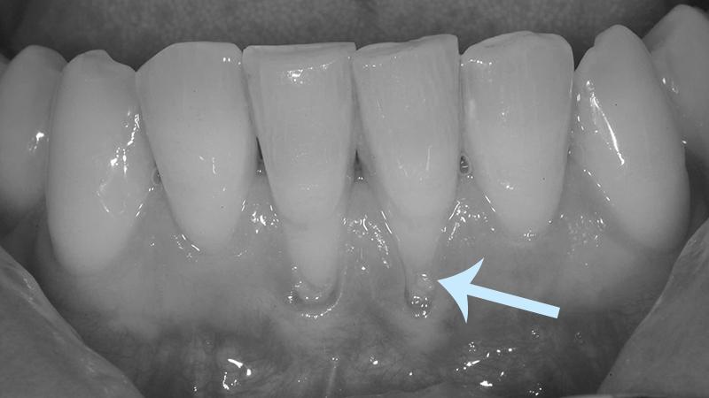 Riscos Do Clareamento Dental Aos Dentes E Gengivas Requer Atencao