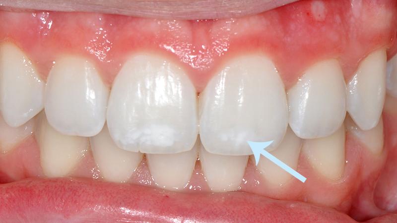 Descubra O Tipo De Clareamento Dental Mais Adequado Para Voce