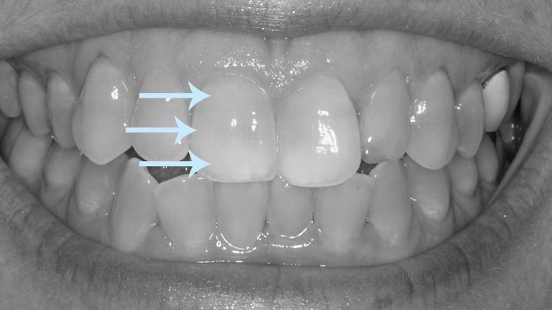 dentes manchados por antibióticos coloração moderada