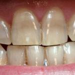 Clareamento de dentes manchados por antibióticos exige cuidados.