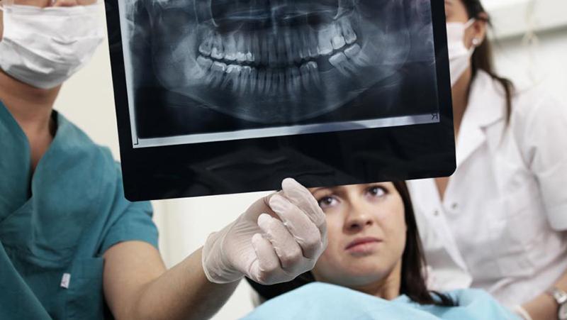infiltração por cárie em coroa dentária post