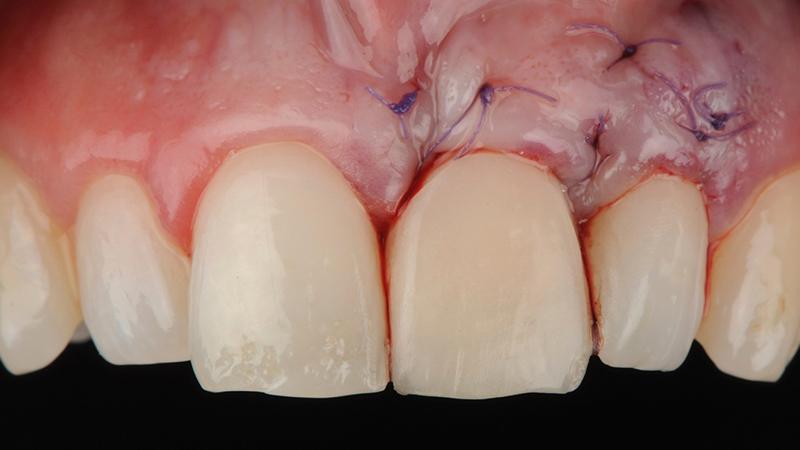 cirurgia gengival pós-operatório enxerto