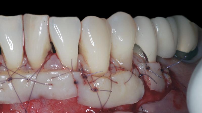 cirurgia gengival pós-operatório enxerto cuidados