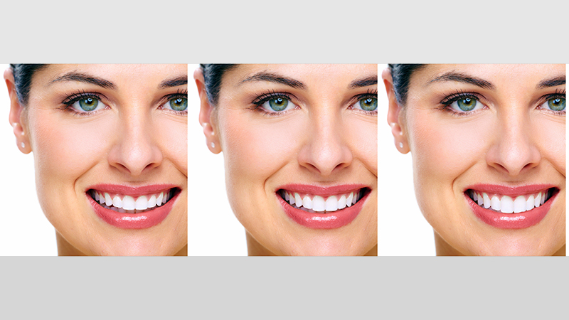 90db9ce33c ... essencial mas pode induzir a erros. fotos antes e depois facetas e  lentes de contato dental post blog · Simulação tipo ...