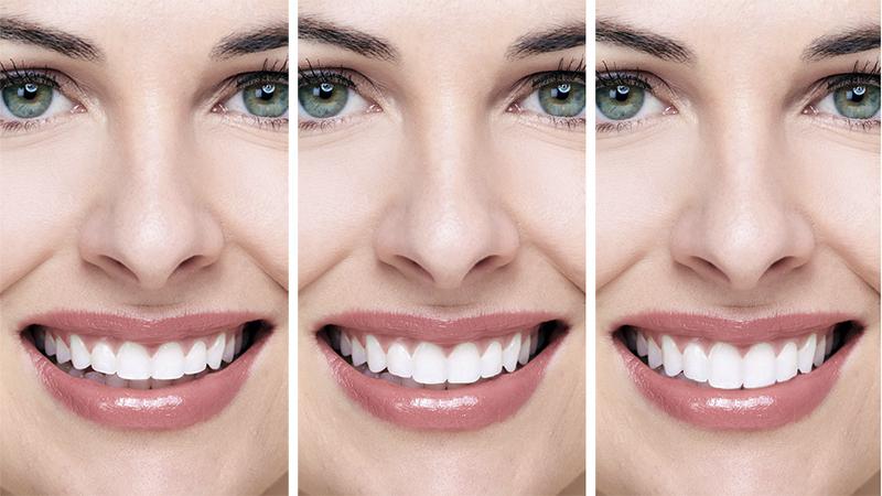 fotos antes e depois facetas lentes de contato post blog