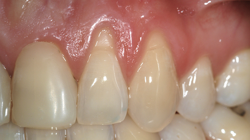 post retração da gengiva e riscos de perder dentes