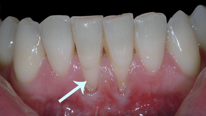 Retracao Gengival Pos Tratamento Ortodontico Tem Sim Recuperacao