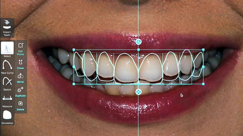 simulação digital lentes de contato dental