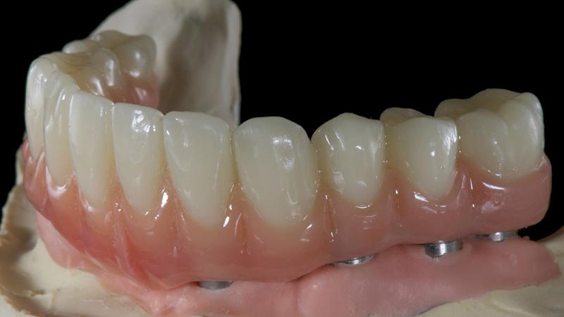 dentadura fixa em acrílico e implante dentário