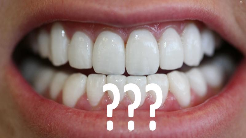 lente de contato dental artistas tratamento
