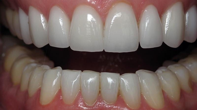 7034484e7bc19 7 desvantagens da lente de contato dental que ninguém está falando.