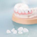7 desvantagens da lente de contato dental que ninguém está falando.