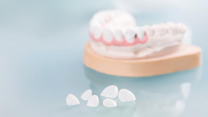 lente de contato dental desvantagens post blog