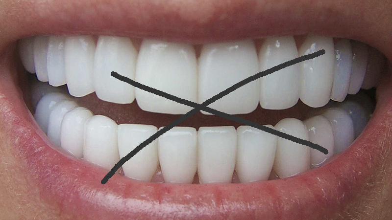 lente de contato dental preços e valores post