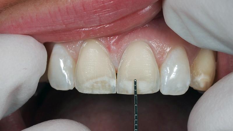lentes de contato dental desgastes e riscos