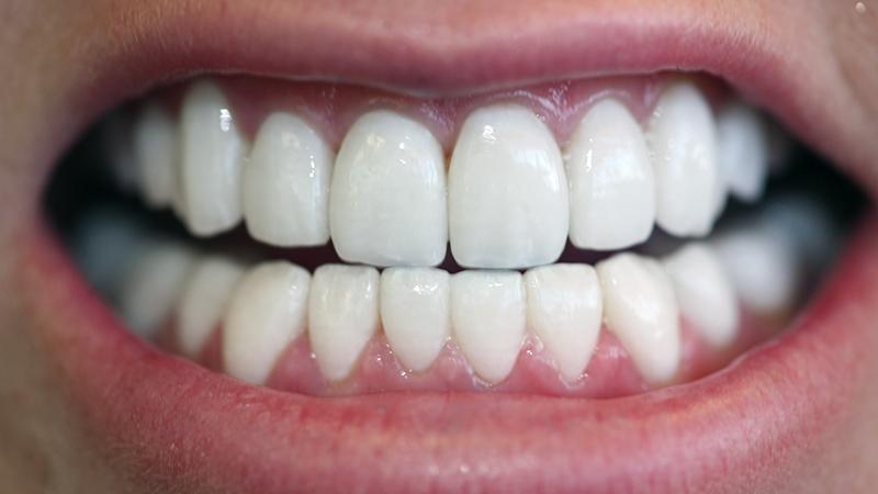 lentes de contato dental erros tratamentos