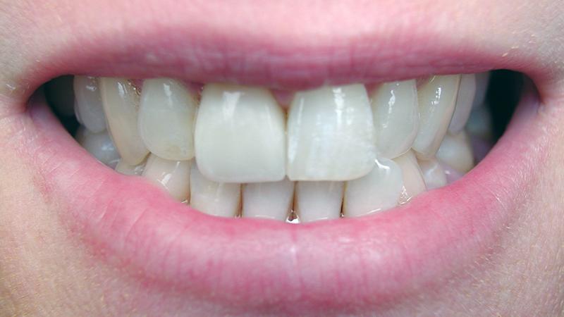 lentes de contato dental harmonia