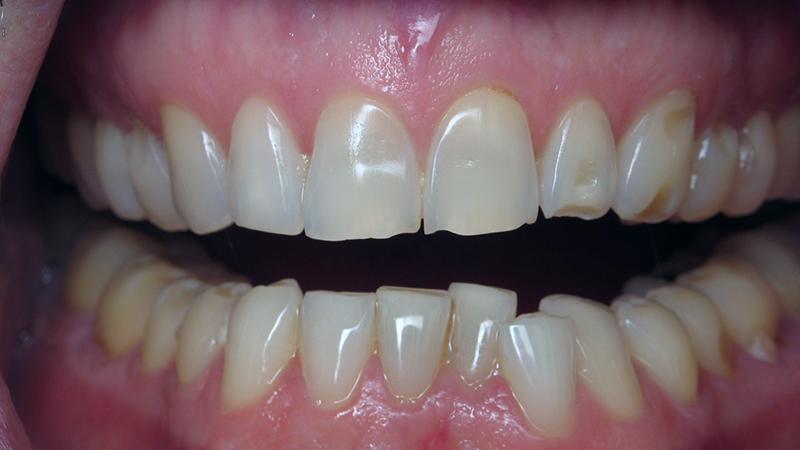 lentes de contato dental indicação correta