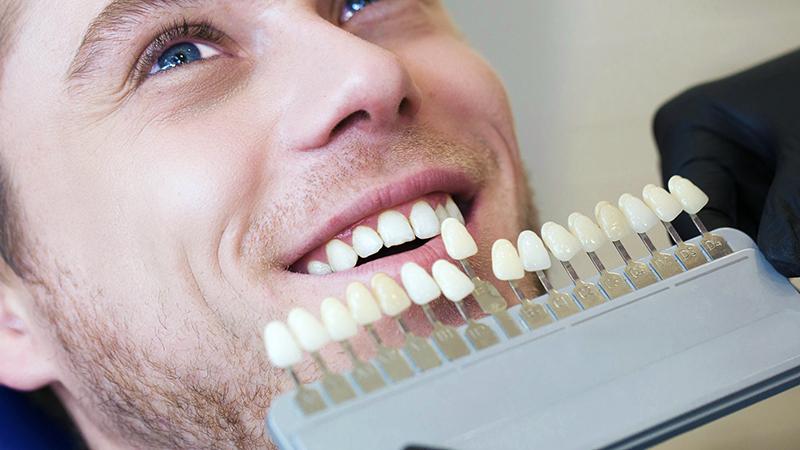 lentes de contato dental seleção de cor ideal