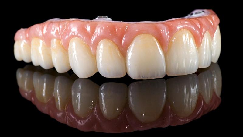 prótese total fixa em porcelana sobre implantes dentários