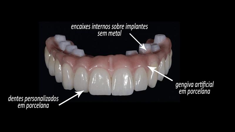 protese fixa em porcelana com zircônia sobre implante