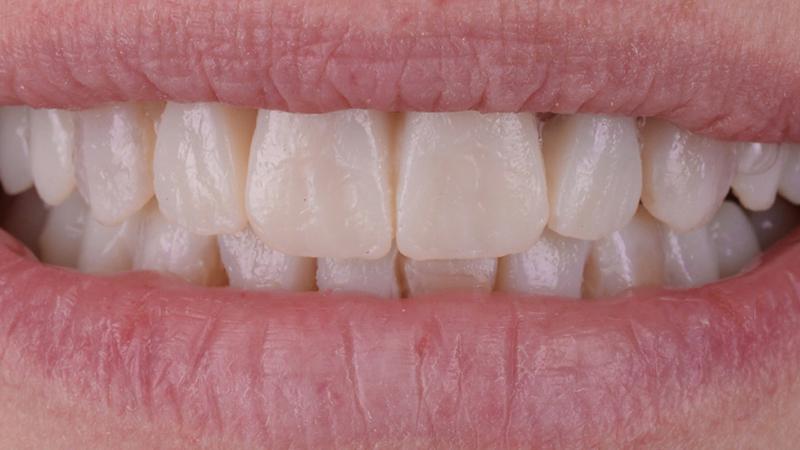 simulação mockup lente de contato dental