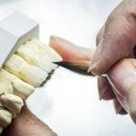 Material de lentes de contato dental não é tudo igual. E agora?