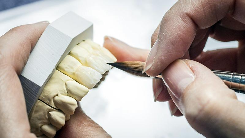 tipo de material lente de contato dental
