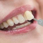 Quanto tempo dura a lente de contato dental até trocá-la novamente?