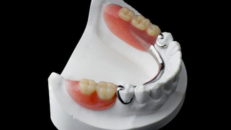 Prótese parcial removível inferior traz desafios à adaptação e usabilidade.