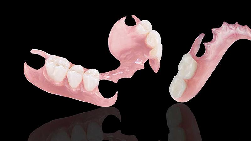 prótese parcial removível flexível