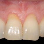 Raiz exposta traz riscos aos dentes muito além da retração gengival.