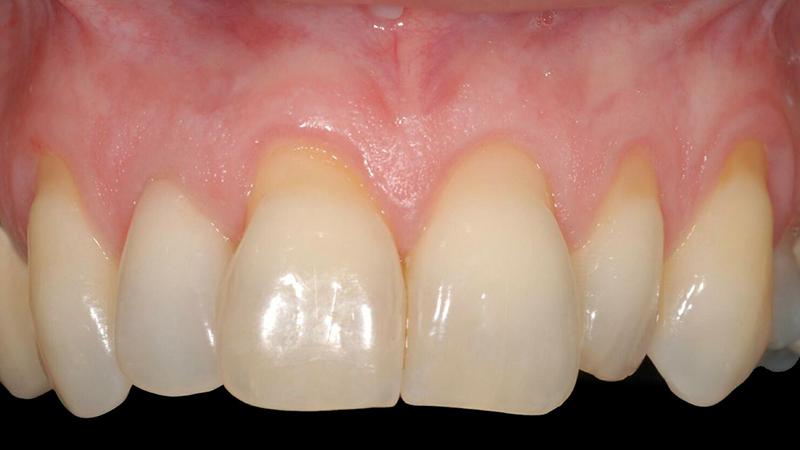 raiz dentária exposta