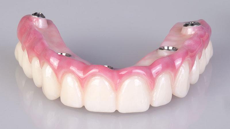 dentadura fixa protocolo implantes