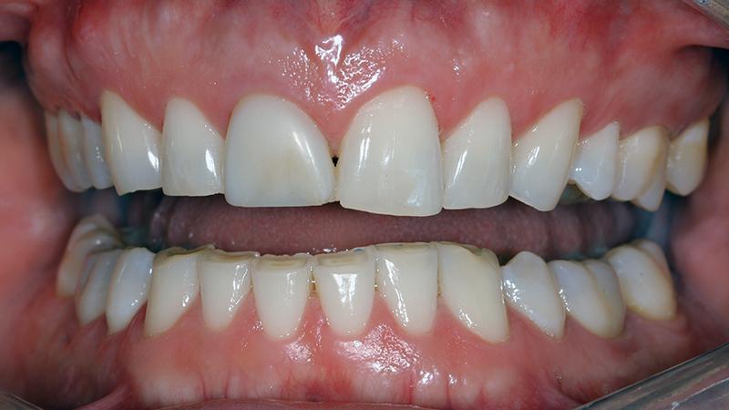 dentes desgastados curtos faceta e lente de contato dental