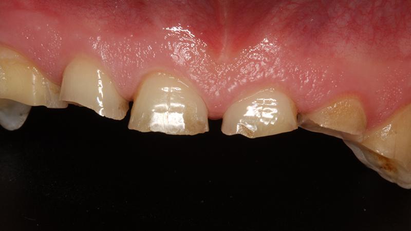 desgaste dentes tratamento com faceta lentes
