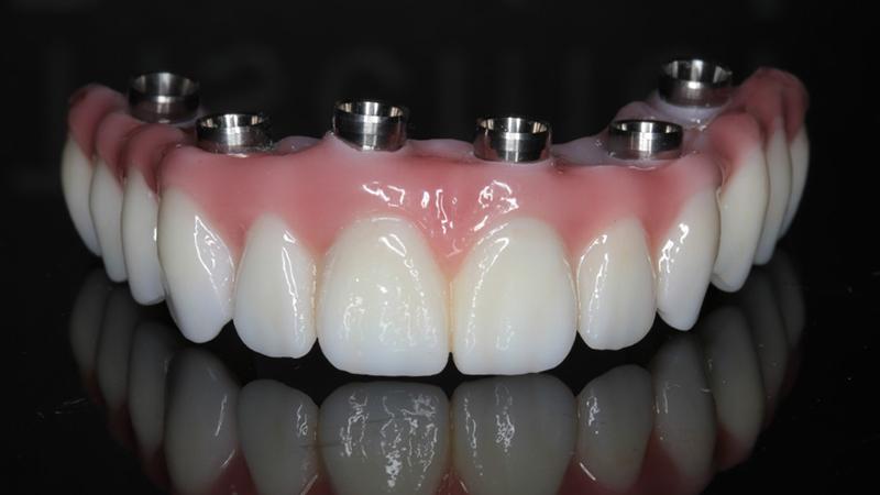 prótese dentária protocolo porcelana com metal