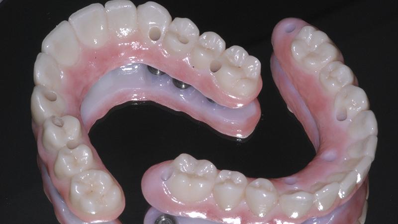 prótese dentária protocolo zircônia