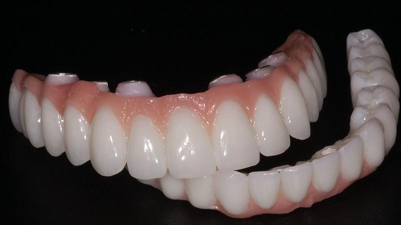 protocolo em zircônia implantes dentários