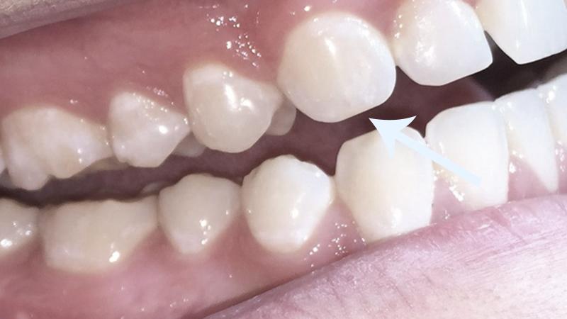 bruxismo canino desgaste dental