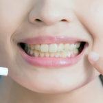 Dentes amarelados. Um guia com tratamentos seguros e efetivos.