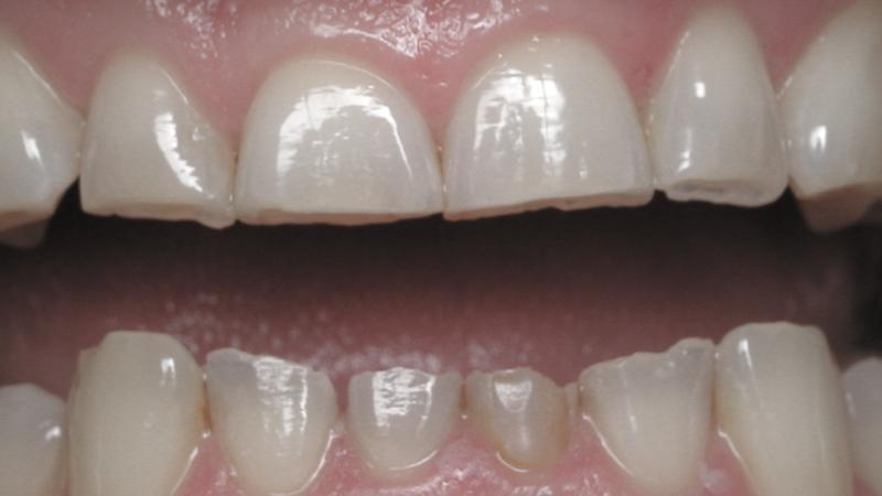 dentes curtos bruxismo